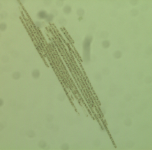 L'Algue du lac Klamath, unique en son genre