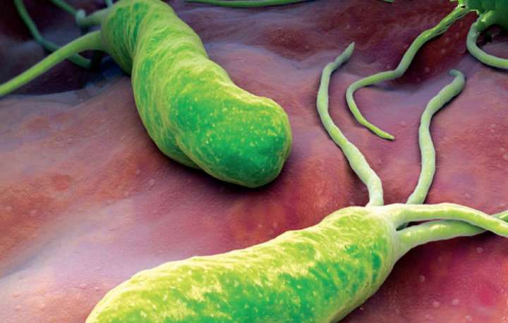 helicobacter pylori, comment s'en débarrasser