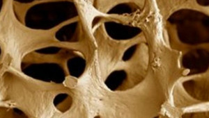 Traitement naturel de l'ostéoporose