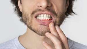 Soigner naturellement les maux de la bouche
