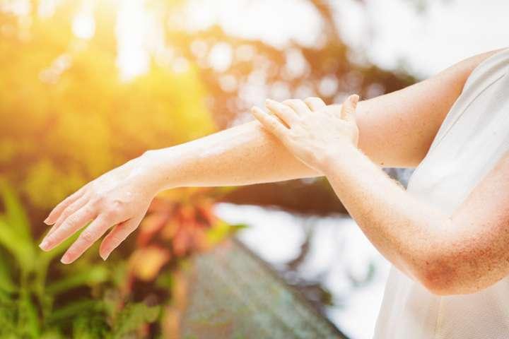 Coup de soleil : pensez aux huiles essentielles calmante